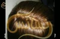 ترمیم مو به روش HRT  مرکز تخصصی مو رنسانس