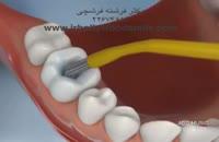 ترمیم پوسیدگی دندان خلفی با کامپوزیت