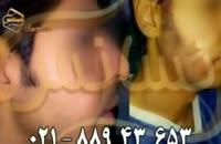 فیلم کاشت ریش و سبیل به روش SUT مرکز مو رنسانس (3).mp4