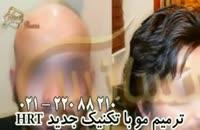 فیلم ترمیم مو به روش HRT  مرکز تخصصی مو رنسانس (9).mp4