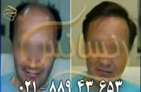 کاشت مو به روش SUT مرکز مو رنسانس (1).mp4