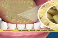 کاهش بوی بد دهان