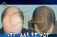 کاشت مو به روش SUT مرکز مو رنسانس