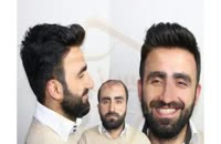 کاشت مو به روش SUT مرکز مو رنسانس (13).mp4
