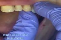 دندان ها با لیمنت چقدر زیبا می شوند؟