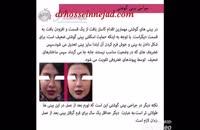 جراحی بینی های گوشتی دکتر حسین نژاد