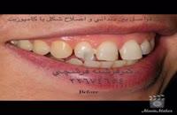 بستن فواصل بین دندانی و اصلاح طرح لبخند با کامپوزیت