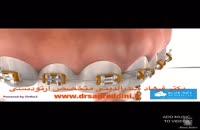 مراحل ارتودنسی 1