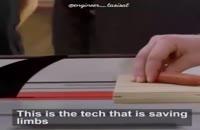 تیغ اره هوشمند! فن آوری که از قطع شدن اعضای بدن جلوگیری میکند!