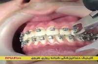 ارتودنسی و زیبایی دندان ها