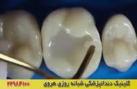 ترمیم و پرکردن دندان با کامپوزیت