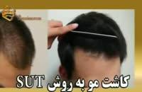 فیلم کاشت مو به روش SUT مرکز مو رنسانس (24).mp4