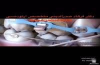 متخصص ارتودنسی در غرب تهران 4