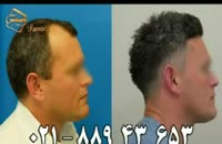 کاشت مو به روش SUT مرکز مو رنسانس (2).mp4