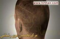 کلیپ انیمیشن کاشت مو به روش SUT (3).mp4