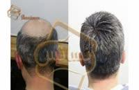 کاشت مو به روش SUT مرکز مو رنسانس (6).mp4