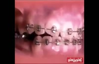 ارتودنسی دندان و عوارض جانبی و مشکلات ناشی در ارتودنسی دندان