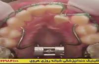 دندان ها با ارتودنسی چگونه مرتب می شوند؟