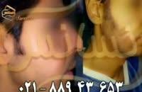 کاشت ریش و سبیل به روش SUT مرکز مو رنسانس (3).mp4
