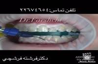 بلیچینگ (سفیدکردن دندان) در مطب