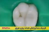 فیلمی کوتاه و واقعی از نحوه پر کردن دندان