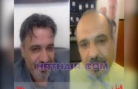 فیلم کاشت مو به روش SUT مرکز مو رنسانس (16).mp4