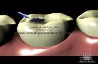 ترمیم پوسیدگی دندان با آمالگام