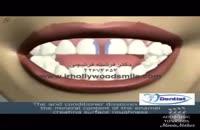 بستن فاصله بین دندانی با کامپوزیت در یک جلسه