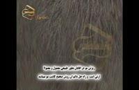 کلیپ انیمیشن کاشت مو به روش SUT (5).mp4