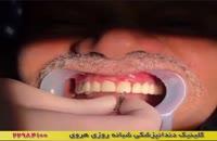 نصب ایمپلنت دندان