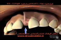 ارتودنسی فاصله دندان و جراحی لثه