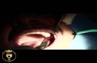 ویدئو کاشت یک واحد ایمپلنت |کلینیک دندانپزشکی مدرن