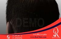 کاشت مو | فیلم کاشت مو | کلینیک پوست و مو رز | شماره 19