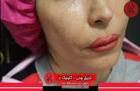 تزریق چربی | فیلم تزریق چربی | کلینیک پوست و مو رز | شماره23