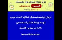 درمان زگیل تناسلی با لیزر در ایران کلینیک