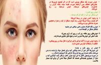 پیشگیری و درمان جوش و لک