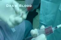 کاشت ایمپلنت با به کارگیری پلاکت خود بیمار|کلینیک دندانپزشکی مدرن