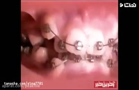 ارتودنسی دندان | کلینیک دندانپزشکی