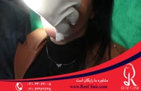 تزریق ژل | فیلم تزریق ژل | کلینیک پوست و مو رز | 14