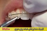 سیم کشی دندانها در ارتودنسی