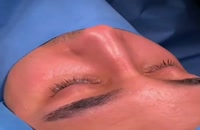 جراحی بینی در مشهد | 09380000893
