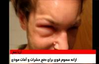 واسپ هارنی بهترین داروی ضد زنبور در تهران