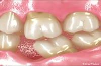 جای خالی دندان از دست رفته را پر کنید