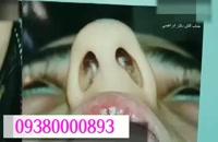 رینوپلاستی در مشهد |09380000893
