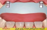 کاشت ایمپلنت دندان برای ردیف جلویی دندان ها