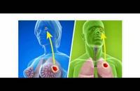 چشم رنگی ها در خطر سرطان چشم , www.ipvo.ir