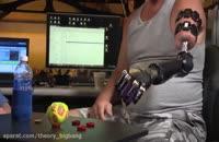 کنترل بازوی رباتیک با ذهن