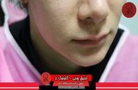 تزریق چربی | فیلم تزریق چربی | کلینیک پوست و مو رز | شماره25