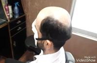 ترمیم موی الگانت /02188962259/پروتز ترمیم مو