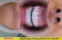 اصلاح طرح لبخند زیبایی دندان